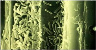 Xylella Fastidiosa : la sous-espèce corse n
